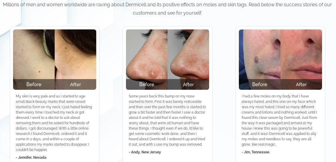 DermiCell Review [Clean Skin Naturally] Is It Remove Mole and Skin Tag?